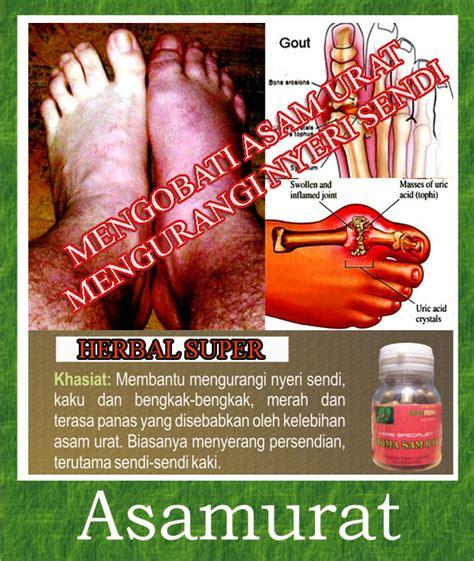 obat herbal tradisional asam urat  rematik sehatherbacom