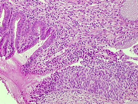 Arias Stella Reaction Pathology Outlines by Pathology Outlines Adenocarcinoma In Situ Ais