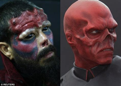 man undergoes extreme body mod surgery to look like red