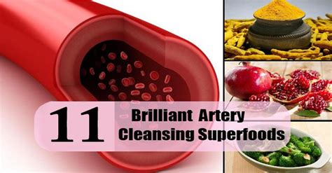 Artery Detox by Top 11 Artery Cleansing Foods