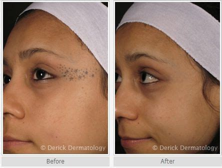 remove face tattoo laser removal before and after photo on the
