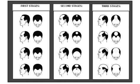 male pattern baldness types know the different types of hair loss fitness studion