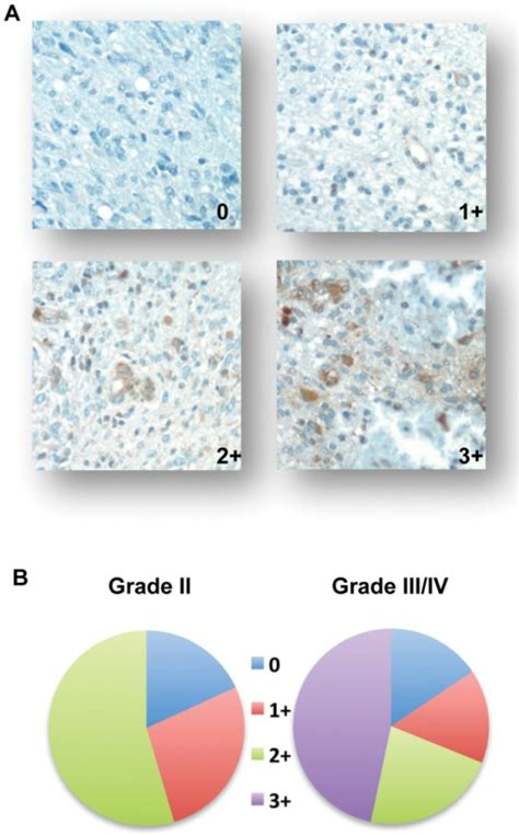 pattern analysis glioma grp78 expression in glioma immunohistochemical staining