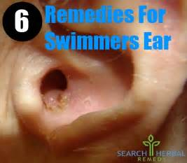 home remedy for swimmers ear 6 remedies for swimmers ear treatments cure