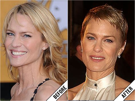 robin wright nose job lisa kudrow plastic surgery before and after photos hot