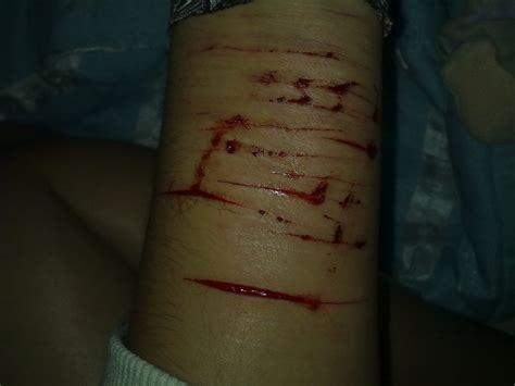 imagenes reales de venas cortadas silenced agosto 2012