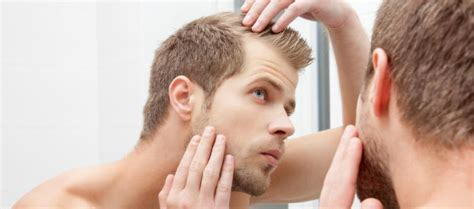 prevent and prolong balding mens health how to prevent stop hair loss in men consumer health plus