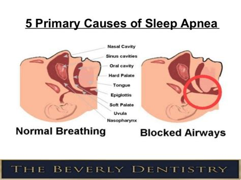 What Causes Sleepers In Your by 5 Primary Causes Of Sleep Apnea
