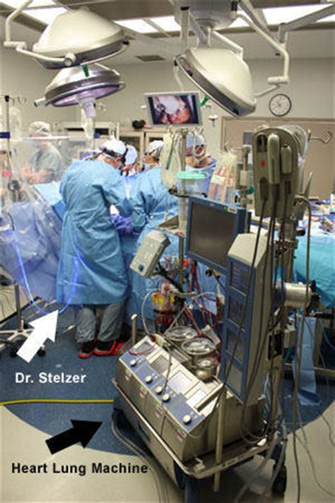 operating room issues mount sinai valve clinic tour dr dr paul stelzer