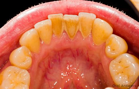 how to clean tartar s teeth what are tartar and calculus answers