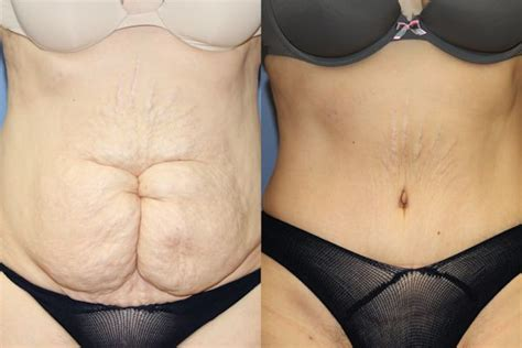 Tummy Tuck Bad And by Tummy Tuck Versus Liposuction
