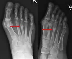stress fractures ankle fractures hertfordshire uk