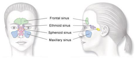 sinus diagram balloon sinuplasty surgery sinusitis pehni