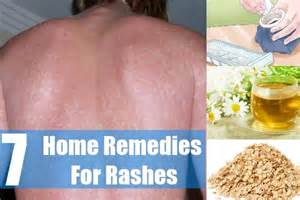 home remedy for rash 44 age spots home remedies treatment home remedy