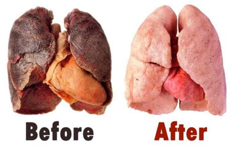 How To Detox Tobacco Damage by Image Gallery Lungs From Cigarettes