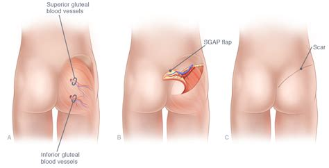 breast reconstruction following mastectomy igap and diep breast reconstruction in ny and ct breast