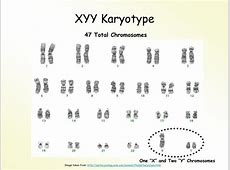 PPT - Karyotypes and Karyotyping PowerPoint Presentation ... Y Chromosome Sperm