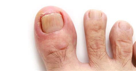 treating an infected ingrown toenail infobarrel 巻き爪の治し方とは 自分で治療する方法と病院での治療法を紹介 hapila ハピラ