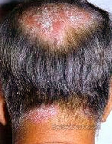 best hair for psoriasis scalp psoriasis symptoms treatment home remedies cure