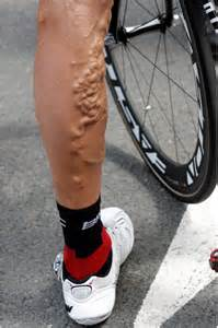 8 pictures of disgusting legs skip your next leg day