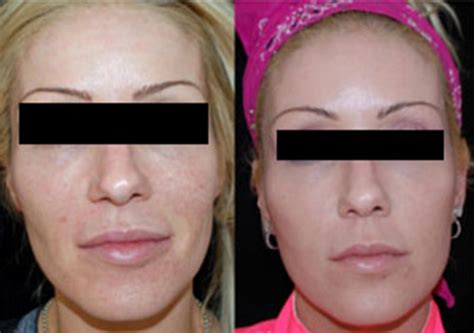 pics of buccal hollow filler injectable fillers boston ma dermal fillers dr seckel