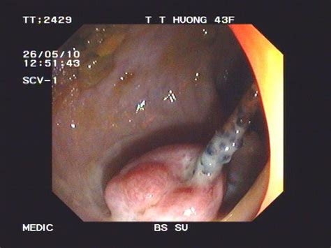 double t shape iuds with one perforating the rectum dr