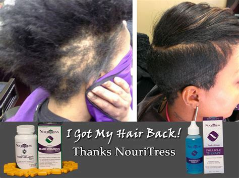 hair growth pills for african americans hair vitamins nouritress