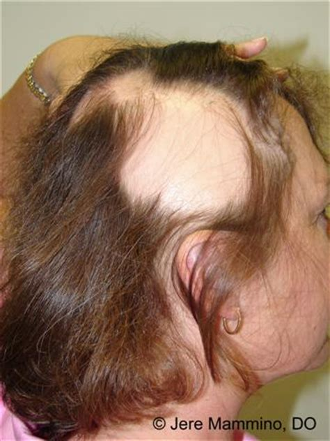inositol for hair loss should you take it progressivehealth alopecia areata american osteopathic college of