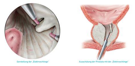 tur prostata klinikum wilhelmshaven