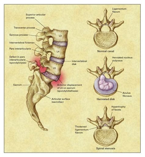 spinal stenosis diagram low back nejm