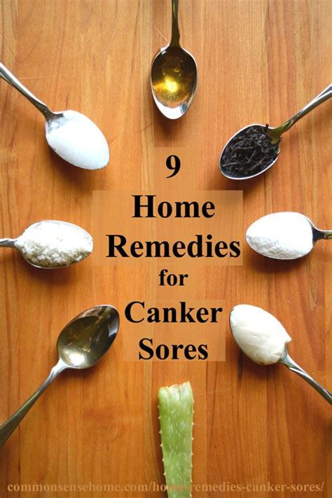 cold sores home remedies from canada 9 home remedies for canker sores home cold sore and the