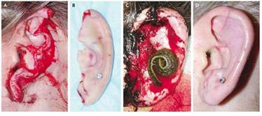 s ear reattached with help of leeches