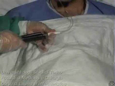 alimentazione tramite sondino naso gastrico somministrazione terapia tramite sondino naso gastrico