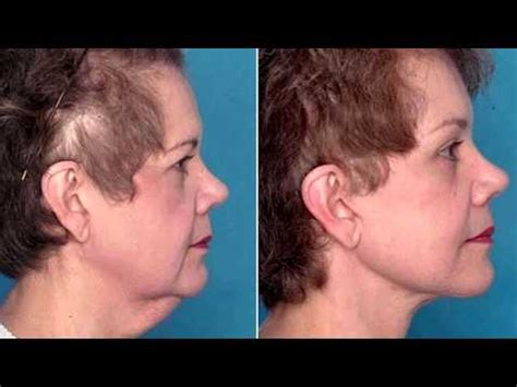 haircuts that hide sagging jaw line hairscut for sagging chin short hairstyle 2013