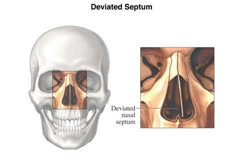 deviated septum diagram diagram nasal septum images