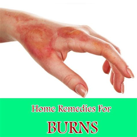 best 25 aid for burns ideas on burn