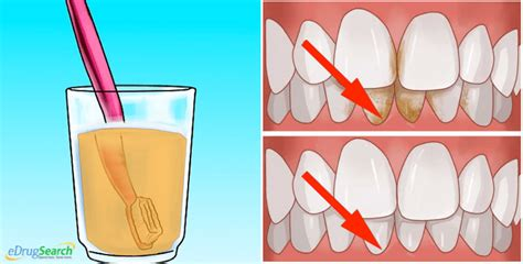 how to clean tartar s teeth how to remove tartar from teeth at home