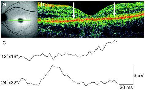 pattern erg standard pattern electroretinography of larger stimulus field size