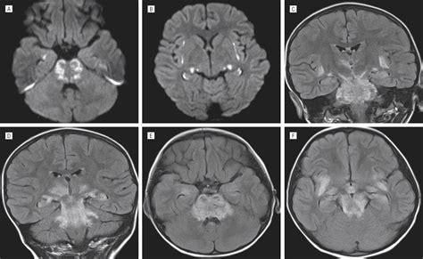 best neurology journals pediatric neurological complications of 2009 pandemic