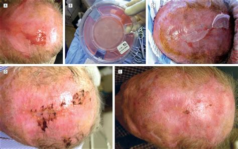 pics of small brain surgery cuts healing update in wound healing in facial plastic surgery