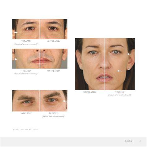 Vitamin Nu Skin age loc nu skin anti aging skin care new galvanic spa