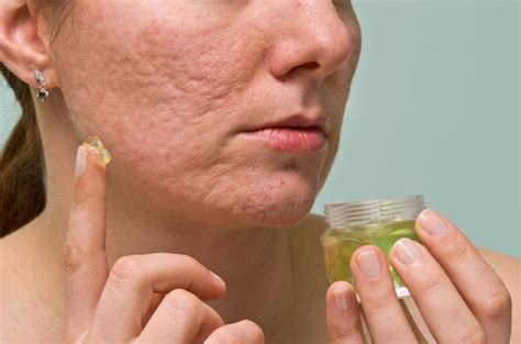 remove acne scars 10 most effective ways to remove acne scars pimple marks