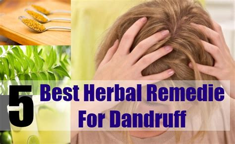 dandruff home remedies and natural cures for common 5 best herbal remedies for dandruff how to get rid of