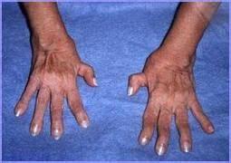 artrite reumatoide e alimentazione la scarlattina scuola della salute igiene naturale