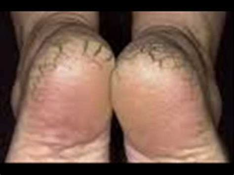 how to cure dry rough cracked or split painful heels at