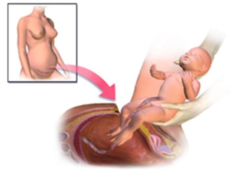 Caesarean Section Wikipedia