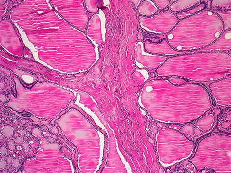 Colloid Goitre Pathology Outlines by Dystonia As Related To Colloid Nodular Goiter Pictures