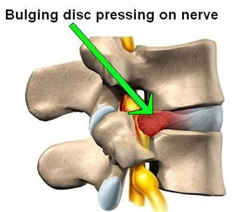 Best Pillow For Bulging Disc In Neck by Arc4life S Relief For The Neck And Low