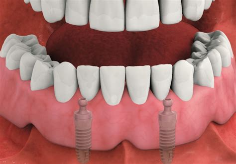 dental implant dentures king square dental practice