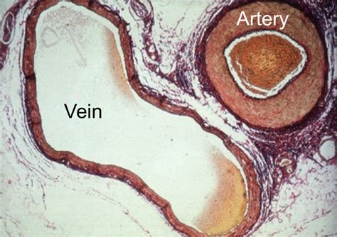 cross section of an artery cardiovascular system